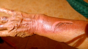My arm today